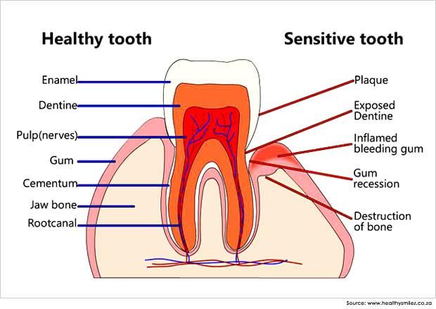 mengobati gigi sensitif